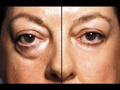 4 Creamless Remedies for Puffy Eyes & Bags Under Eyes