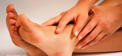 Natural First Aid For Bruises And Sprains