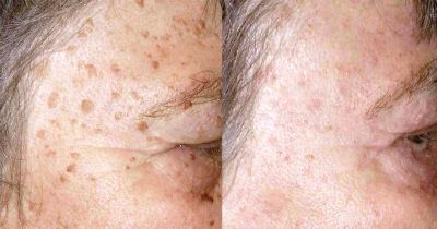 5 Simple Remedies for Quickly Removing Age Spots Without Damaging Your Skin