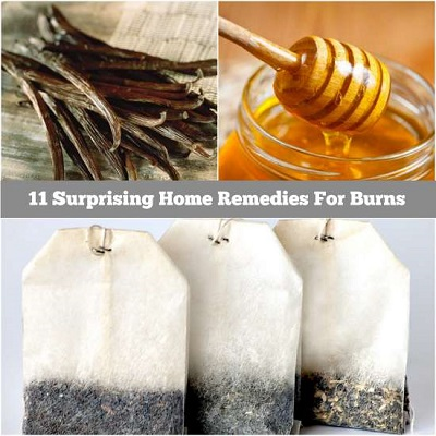 11 Surprising Home Remedies For Burns