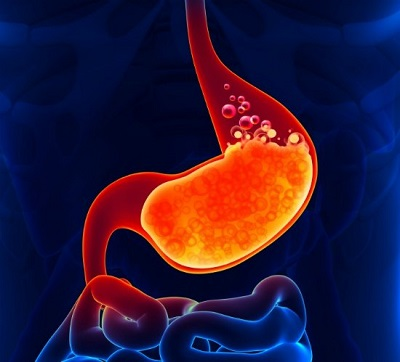 The Real Cause Of Acidity And 9 Natural Remedies To Cure It