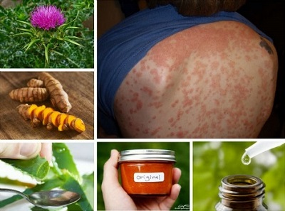 20 Home Remedies For Psoriasis