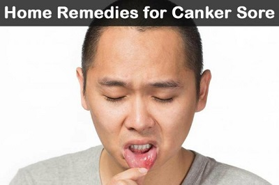 21 Home Remedies For Canker Sores