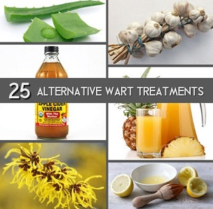 25 Alternative Treatments For Warts