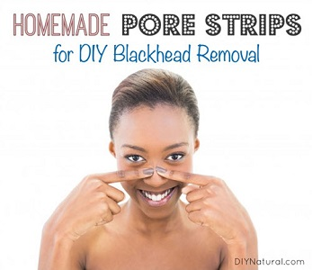 Homemade Pore Strips For DIY Blackhead Removal