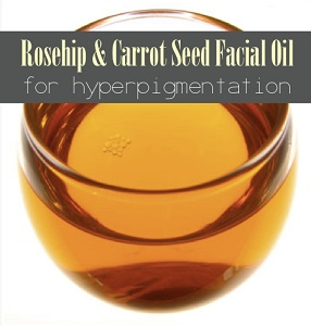 Rosehip and Carrot Seed Oil Facial Serum For Hyperpigmentation