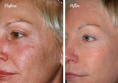 handmade-mask-for-wrinkles-and-skin-rejuvenation