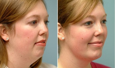 how-to-get-rid-of-a-double-chin-without-surgery