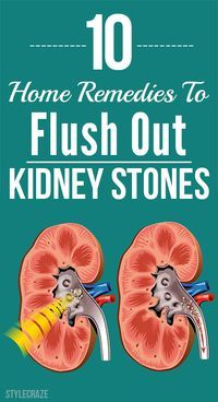 Home Remedies To Flush Out Kidney Stones