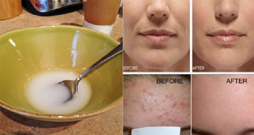 Remove Wrinkles, Scars and Stains From Your Face