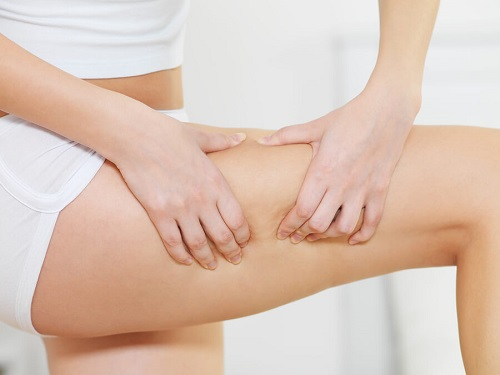 9 Natural Remedies For Cellulite