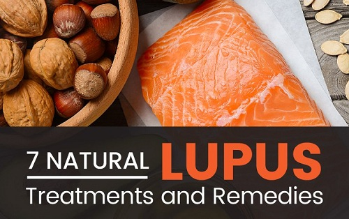 Natural Lupus Treatments and Remedies