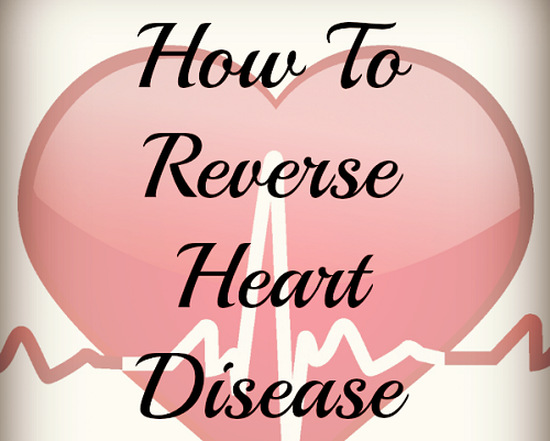 Reverse Heart Disease Naturally at Home