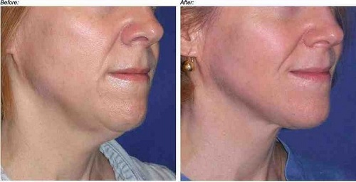Natural Ways To Tighten Neck Skin